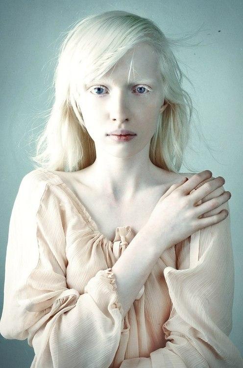 Nastya Zhidkova modelo con albinismo modelos estereotipos